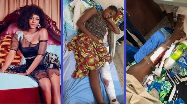 Injured-Seigha-Atia-ex-girlfriend-to-Patience-Jonathan-cousin-Oba