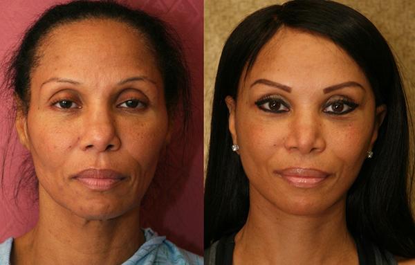 Black-woman-facelift