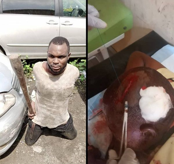 image-of-driver-injures-lastma-official-with-pestle-in-lagos