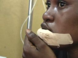 Must read! A Ghanaian woman got her lips bitten off just for asking for a lift
