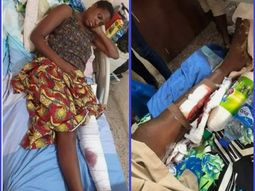 Lady's leg amputated after Ex first lady Patience Jonathan's cousin crushed it with his car