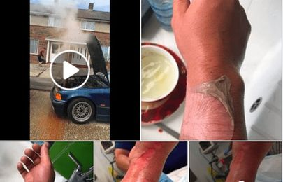This is why you should never open the radiator cap while it's boiling hot [Video]